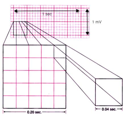 ekg tracing paper
