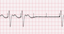 Pacemaker Failure to Capture