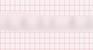 Premature Atrial Complex