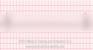 Third Degree Heart Block