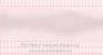 Ventricular Tachycardia Polymorphic