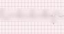 Premature Ventricular Complex Quadrigeminy