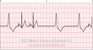 Pacemaker Failure to Pace