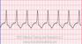 Accelerated Idioventricular Rhythm