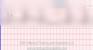 Second Degree Heart Block Type I