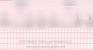 Second Degree Heart Block Type II
