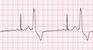 Premature Ventricular Complex Bigeminy