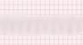 Ventricular Tachycardia Monomorphic