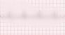 Atrial Flutter EKG strip
