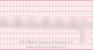 Premature Ventricular Complex