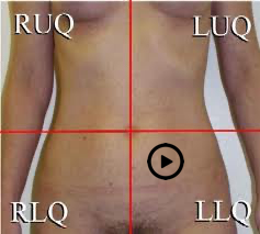 patient torso with stethoscope at tricuspid position