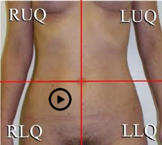 patient torso with stethoscope at Erb's Point position