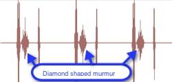 diamond shaped murmur