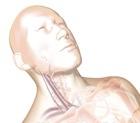 Carotid Artery Bruit