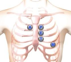 heart murmurs location areas