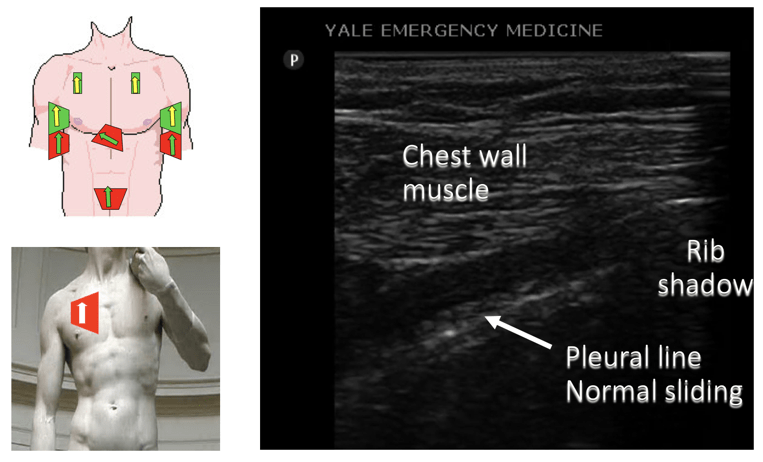 ultrasound annotated image