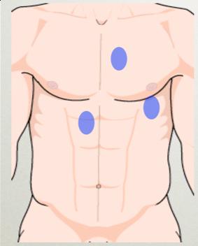 cardiac ultrasound positions