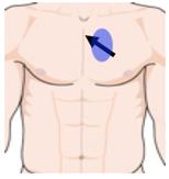 parasternal long axis effusion