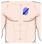 parasternal short axis sensor position