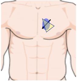 ultrasound sensor position