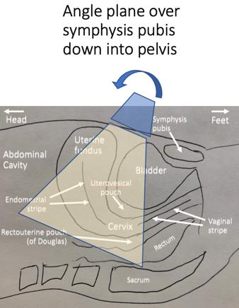 sagittal anatomy