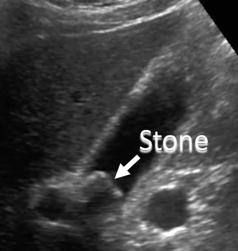 annotated ultrasound gallstone