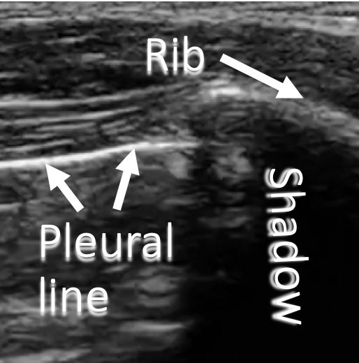 annotated ultrasound image