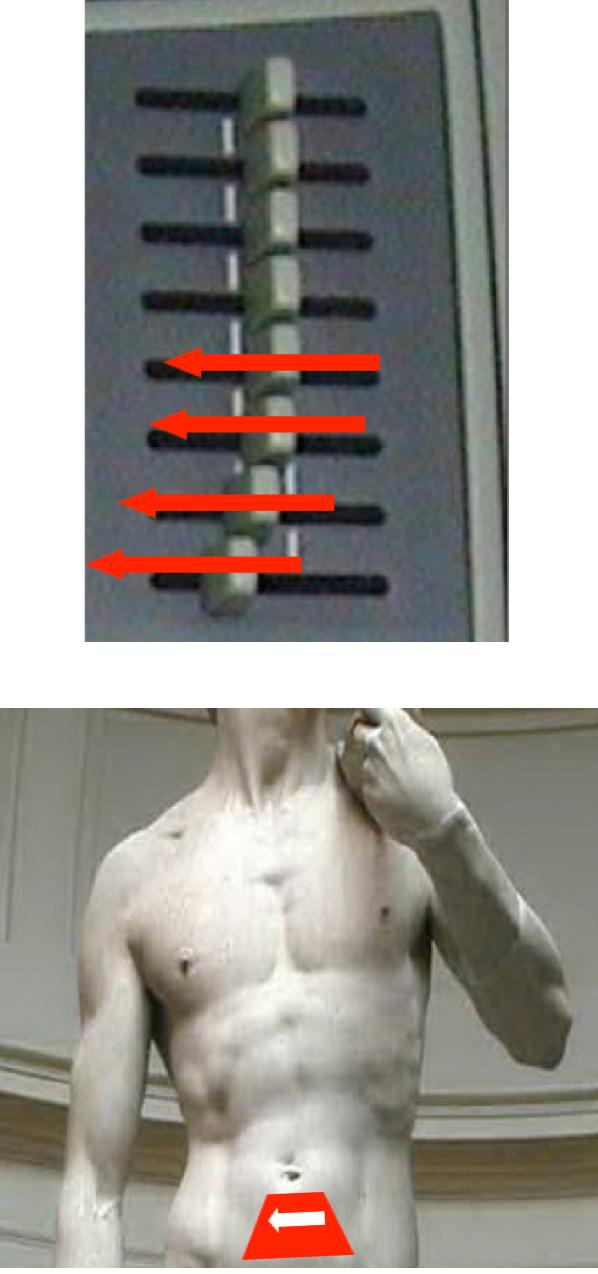 acoustic enhancement and ultrasound sensor position