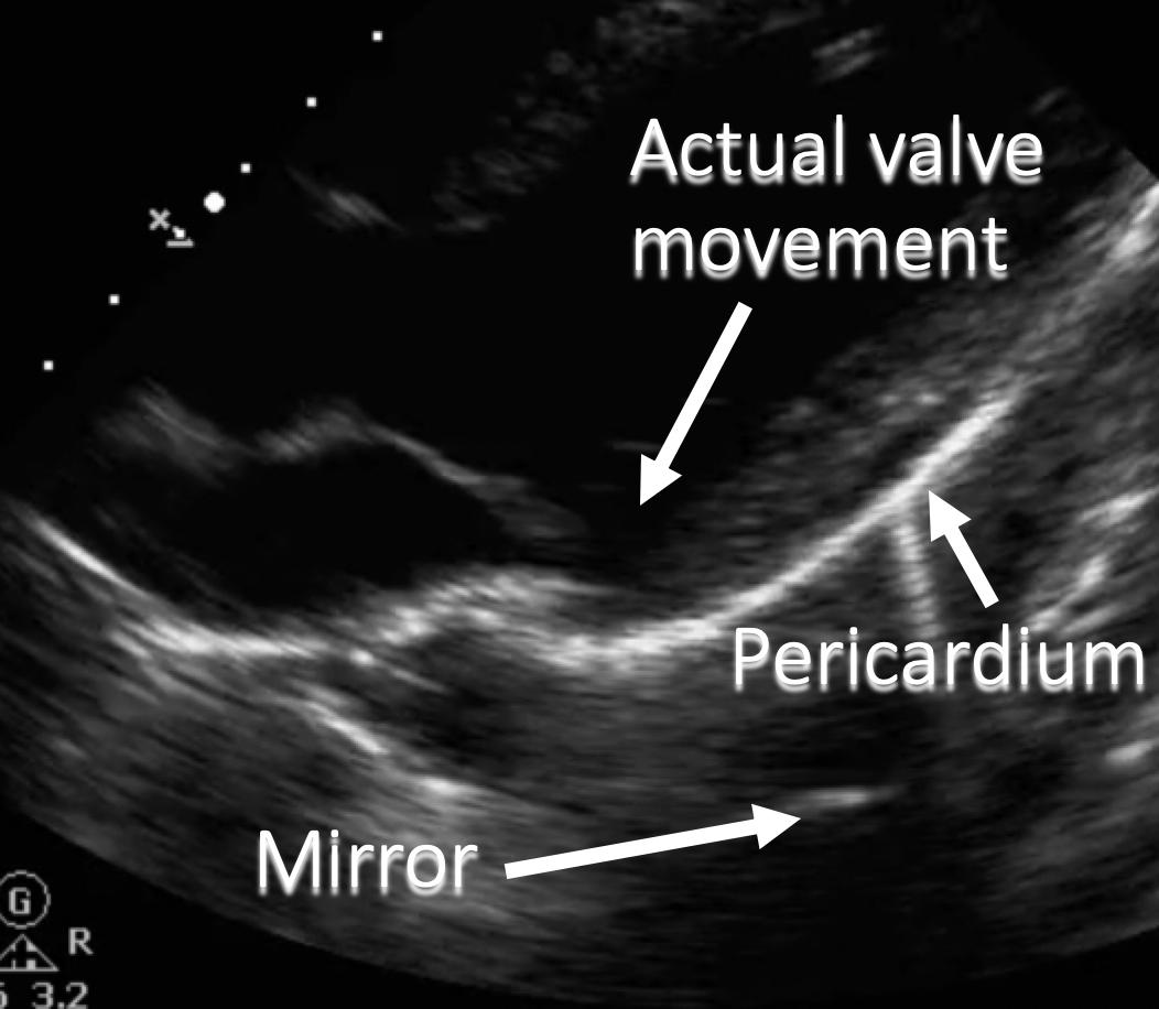 annotated ultrasound mirror image artifact behind pericardium