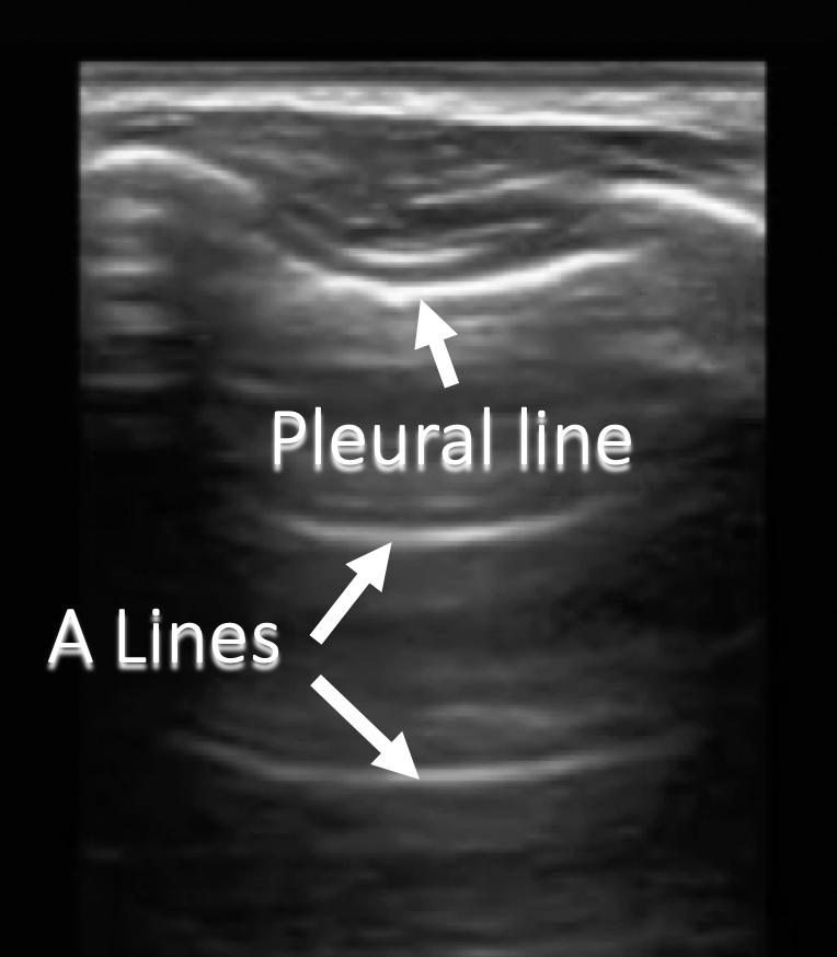 annotated ultrasound reverberation artifact