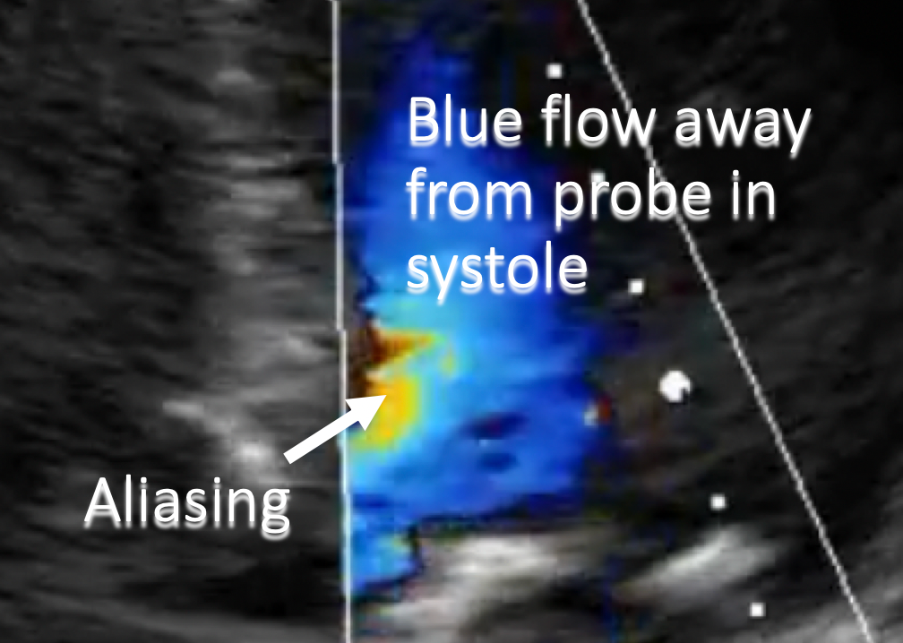 annotated aliasing doppler ultrasound artifacts