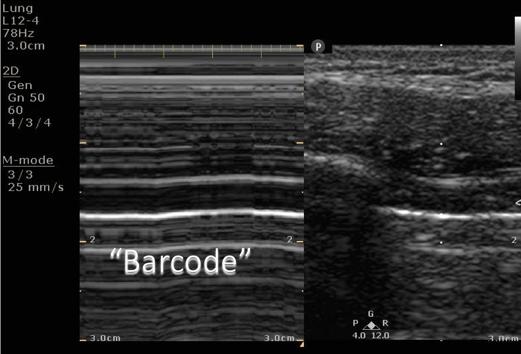 ultrasound ptx no sliding