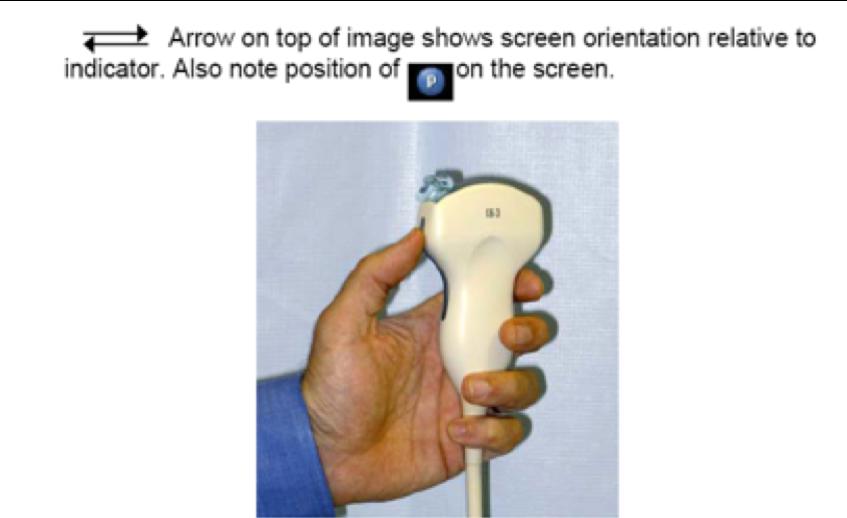 cardiac sonography sensor orientation