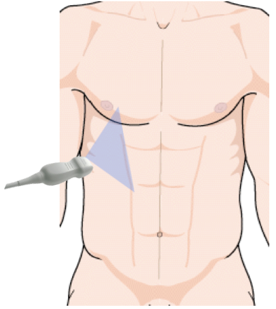 ultrasound sensor position for pleural effusion