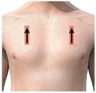 ultrasound sensor position pneumothorax