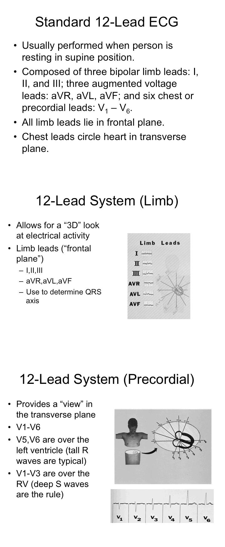 12 lead ecgt