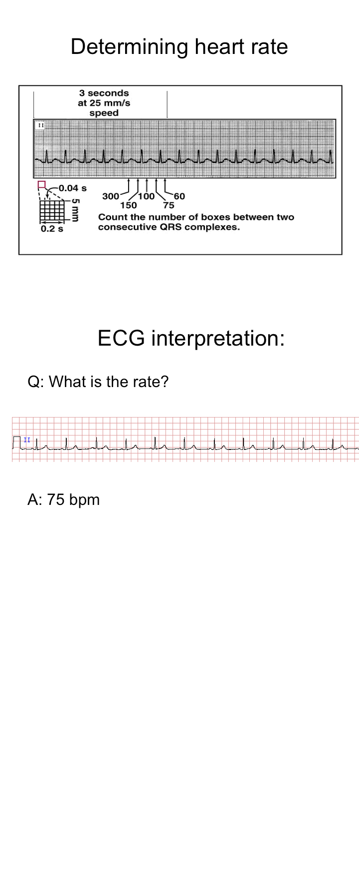 determining heart rate