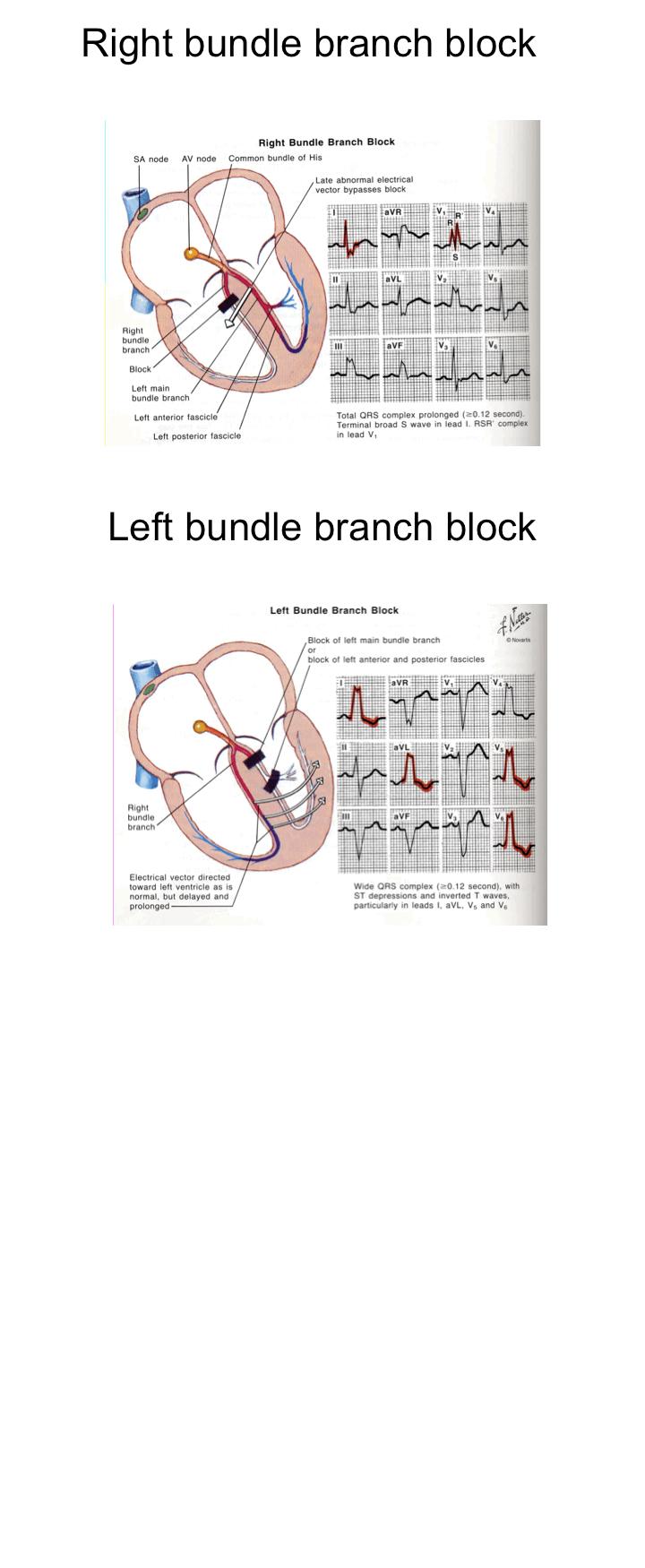 bundle branch block